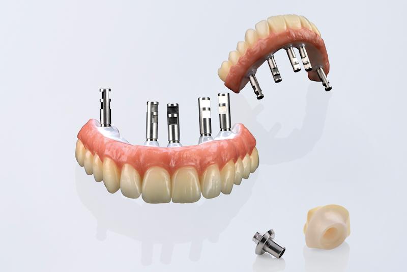 implants, implant dentures, crowns, emax monolithic, zirconia crowns, veneers, occlusal splints