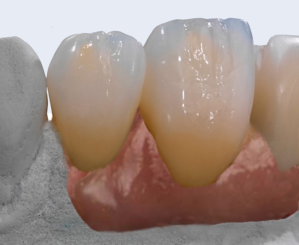 mplants implant dentures crowns emax monolithic zirconia crowns veneers occlusal splints talon dental australia high quality crowns